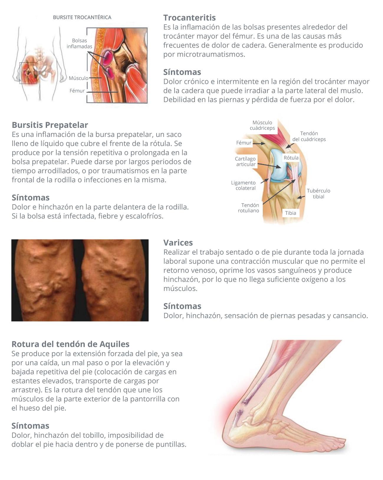 Síndica frontal que genera diabetes